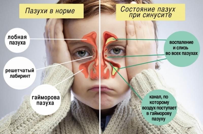 Синусит сустава симптомы и лечение уплотнение на лучезапястном суставе