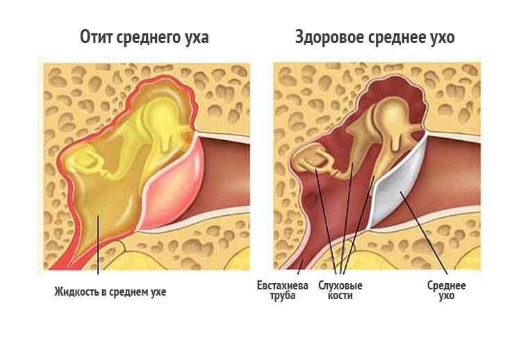 Лечение среднего уха в домашних условиях